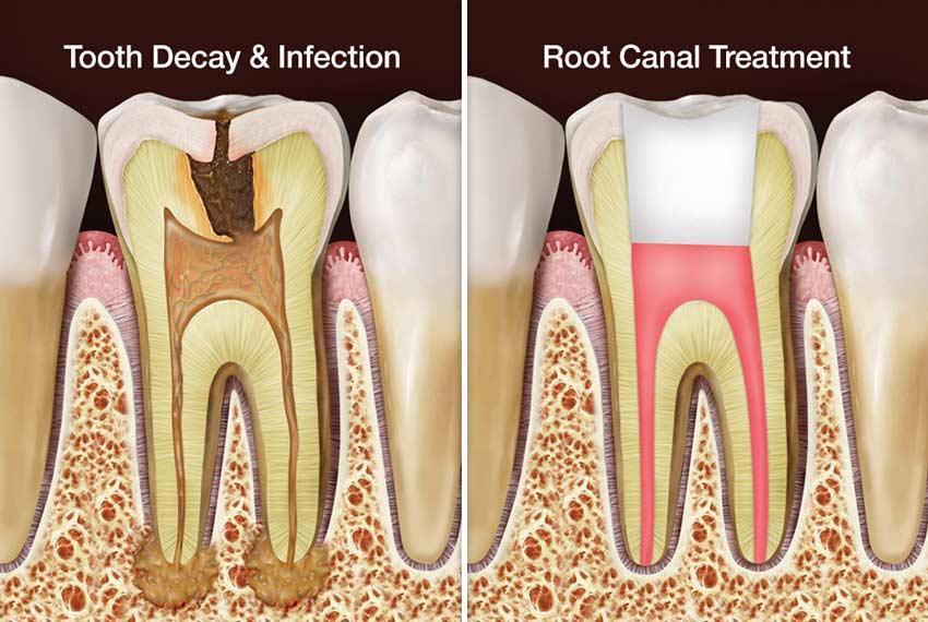 نحوه روت کانال دندان