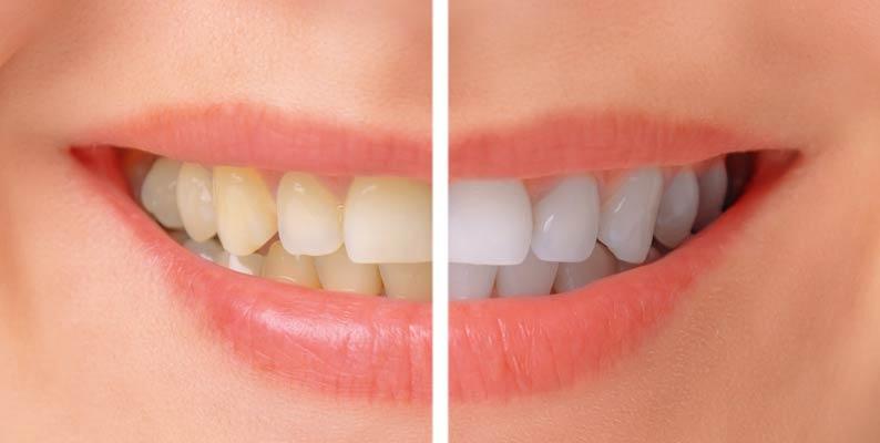 بهترین و بدترین غذاها برای سلامت دندانها
