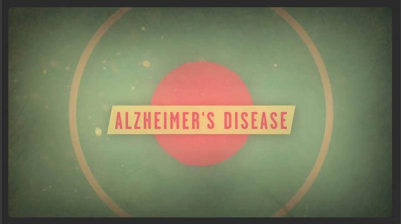 بیماری آلزایمر چیست؟