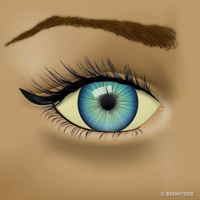 زرد شدن سفیدی چشم