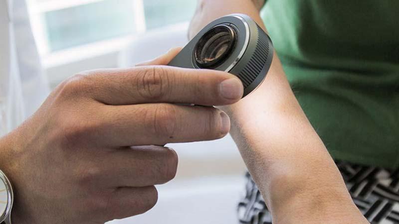 تشخیص سرطان پوست با کمک یک اپلیکیشن